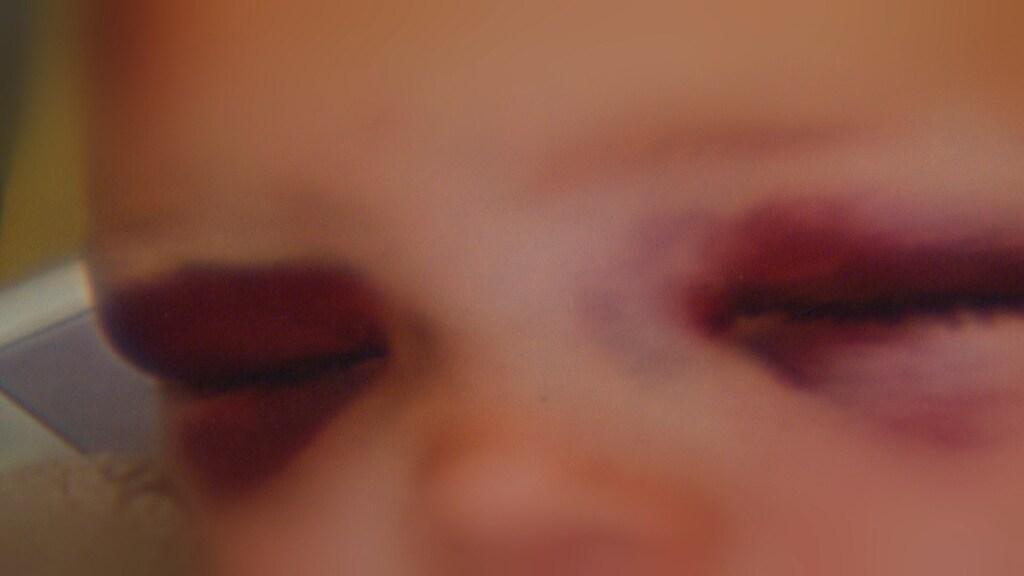 Blauwe ogen van één van de slachtoffertjes nadat hij afgelopen zomer van een mulitplay viel