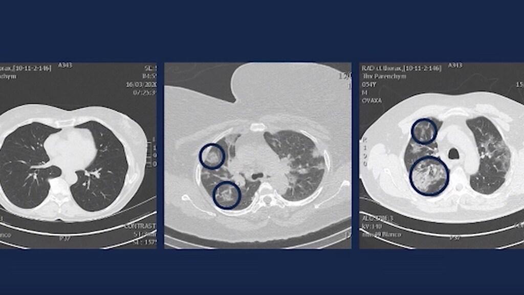 De arts toonde deze drie scans.