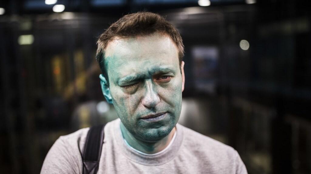 Aleksej Navalny in 2017, nadat hij werd aangevallen met een chemische stof.