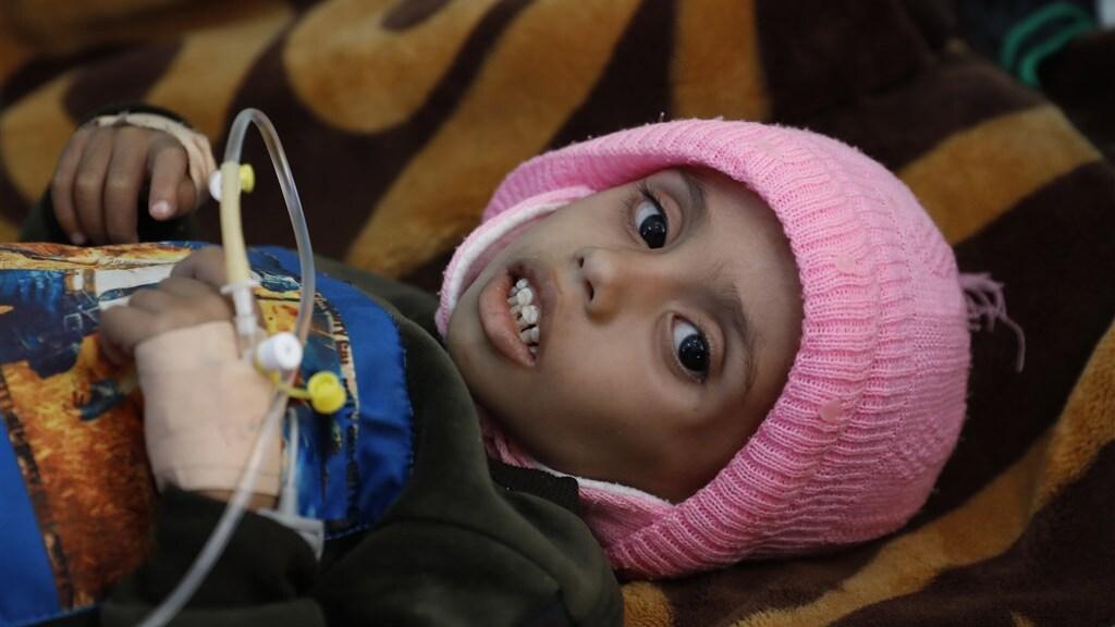 In een kliniek in Sa'ana wordt geprobeerd ondervoedde kinderen in leven te houden.