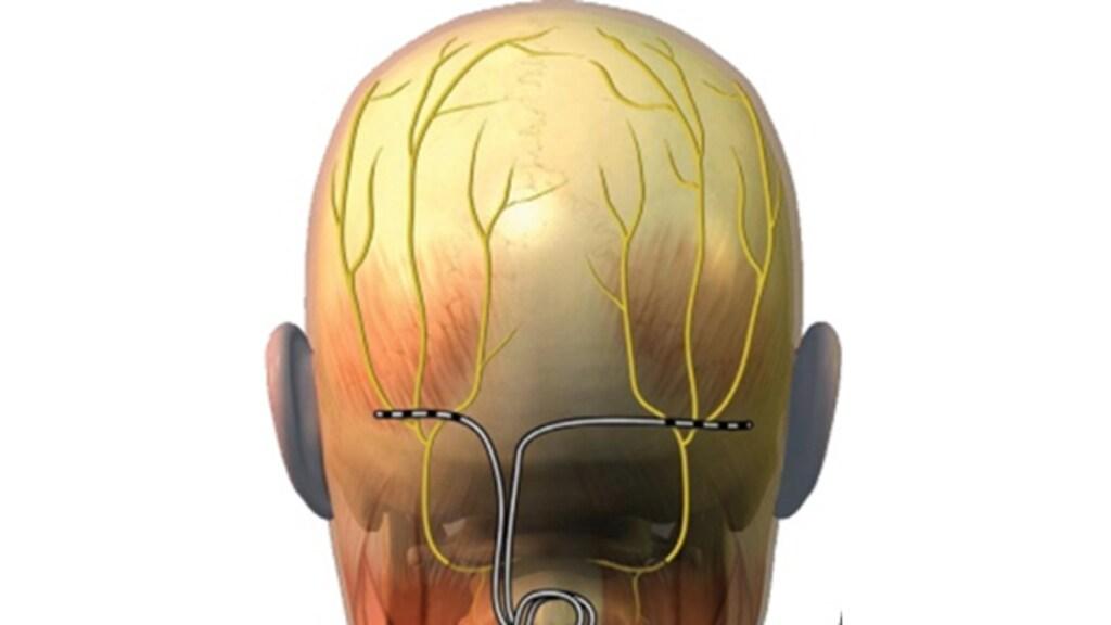 De neurostimulator zit onderhuids op het achterhoofd. In de buik of bil zit een batterij die met een draad verbonden is met de stimulator en het voorziet van stroom.
