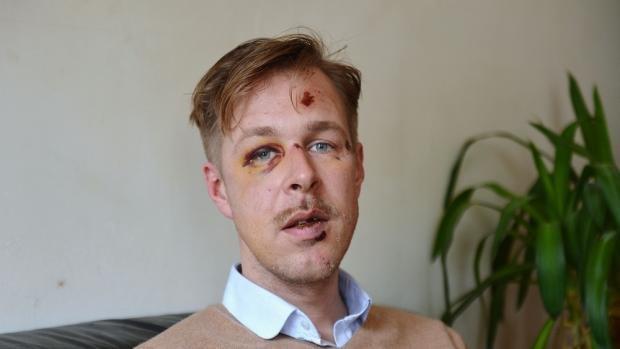 Homohaat Parijs: eisen tot drie jaar in zaak mishandelde Nederlander