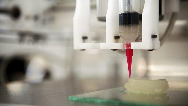 Hoe 3D-prints de medische wereld veroveren