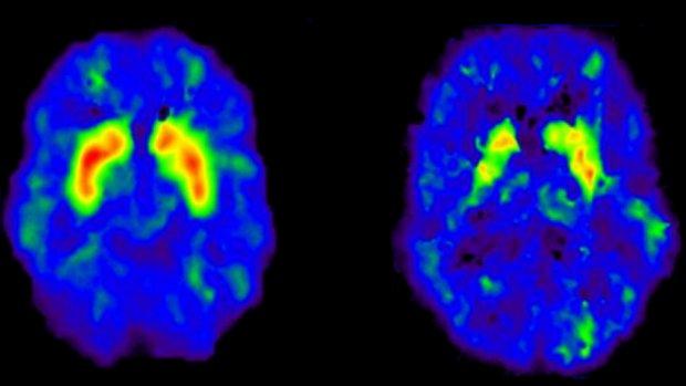 Wetenschappers waarschuwen voor 'gedachtenlezen'