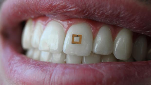 De nieuwe stappenteller: tandsensor meet wat je binnenkrijgt