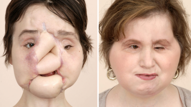 Katie kreeg nieuw gezicht na zelfmoordpoging