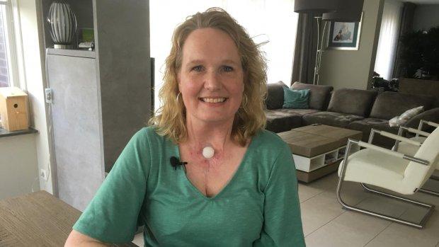 Te veel onwetendheid over Hoofd-halskanker