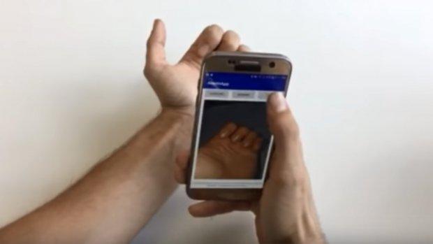 App herkent bloedarmoede aan foto's van nagels
