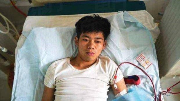 Chinees die nier verkocht om iPhone te kopen is nu invalide