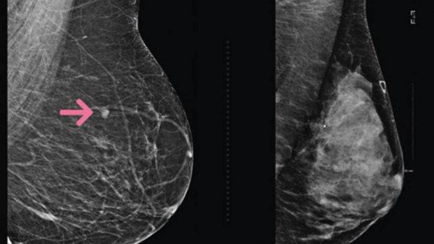 Nieuw systeem met AI voorspelt borstkanker veel preciezer