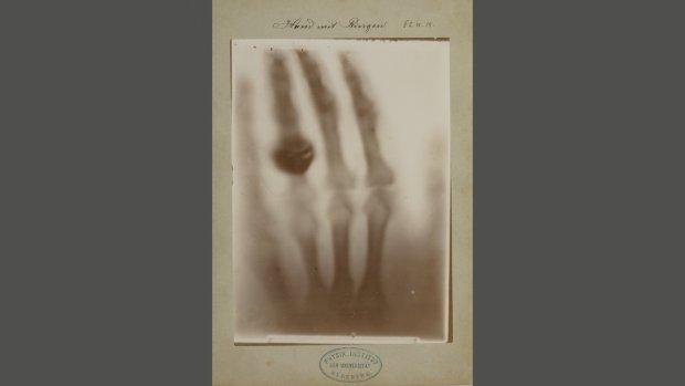 Unieke vondst in Haarlem: oudste röntgenfoto's ooit gemaakt