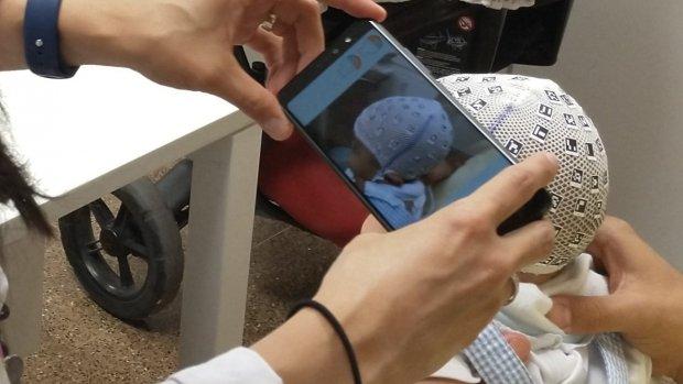 Artsen meten babyschedels met smartphone-app