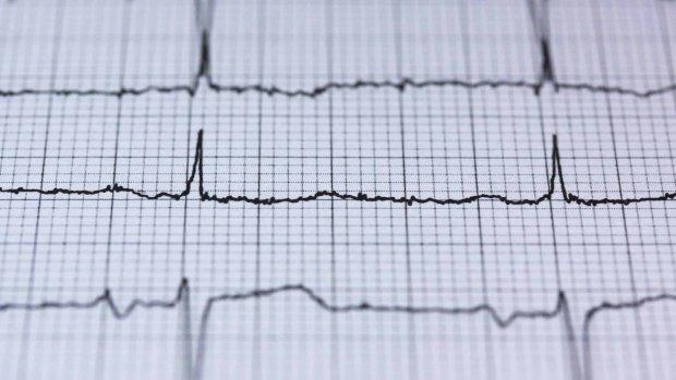 Hartslag-algoritme voorspelt of je binnen 30 dagen dood gaat