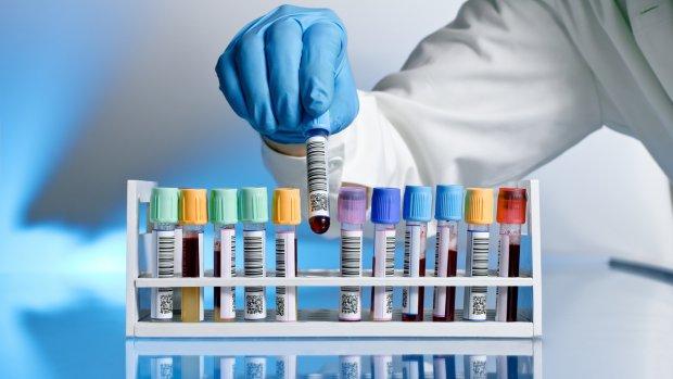 Immuunziekten behandelen op basis van moleculaire handtekening
