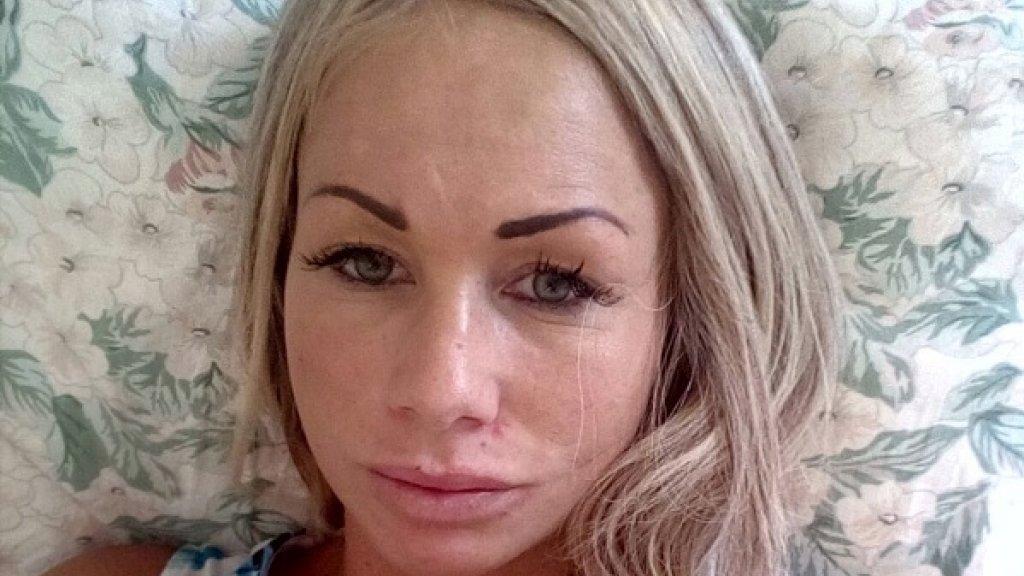 Uitgelezene Barbie zonder botox: kan een gezicht nog herstellen?   RTL Nieuws WS-09