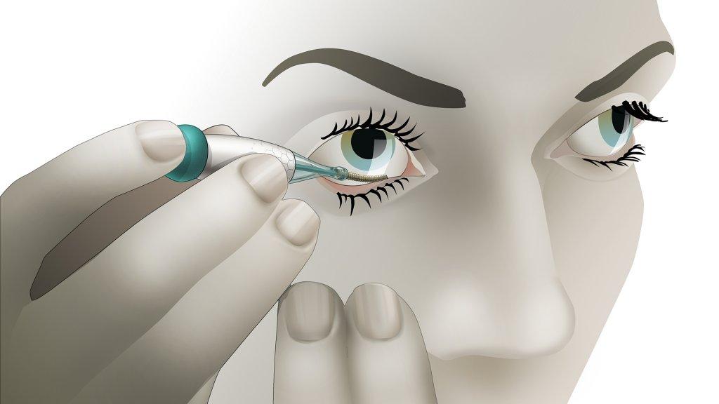 De sensor van Noviosense wordt onder het ooglid geplaatst