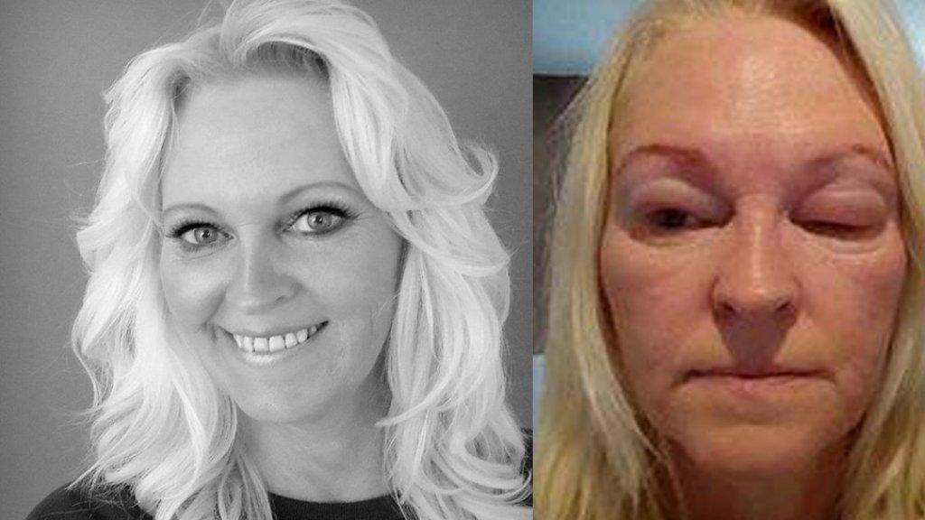 allergische reactie in het gezicht