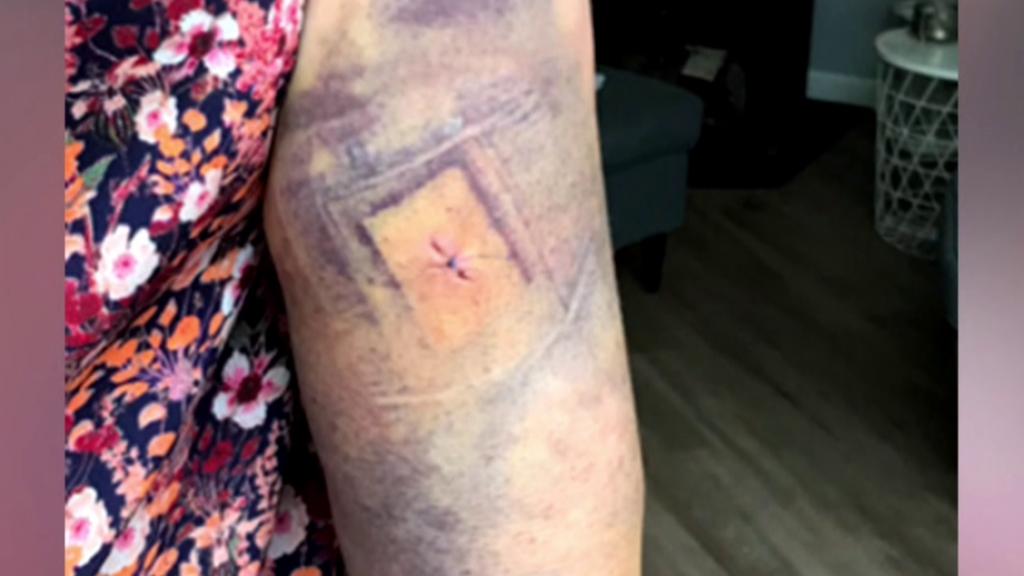 De mogelijke steekwond in de arm van de 52-jarige hardloopster.