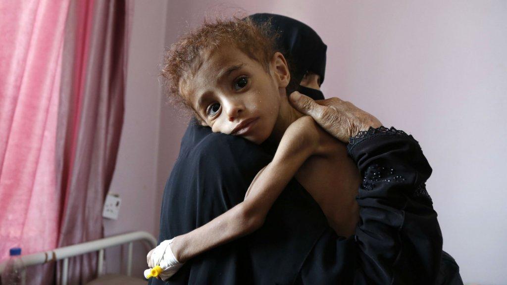Veel kinderen zijn door het conflict in Jemen zwaar ondervoed.