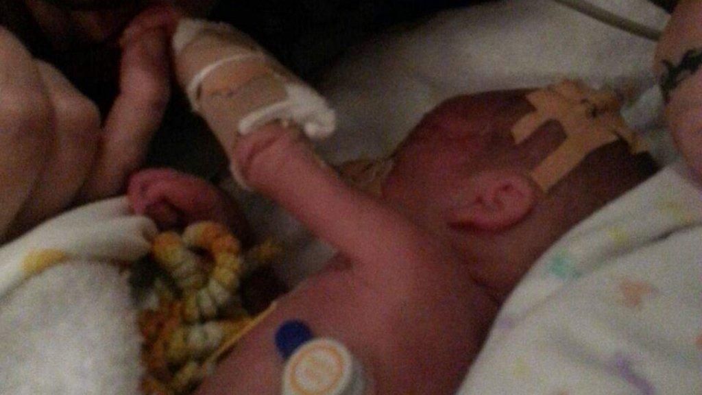 Baby Damian woog 620 gram toen hij werd geboren.