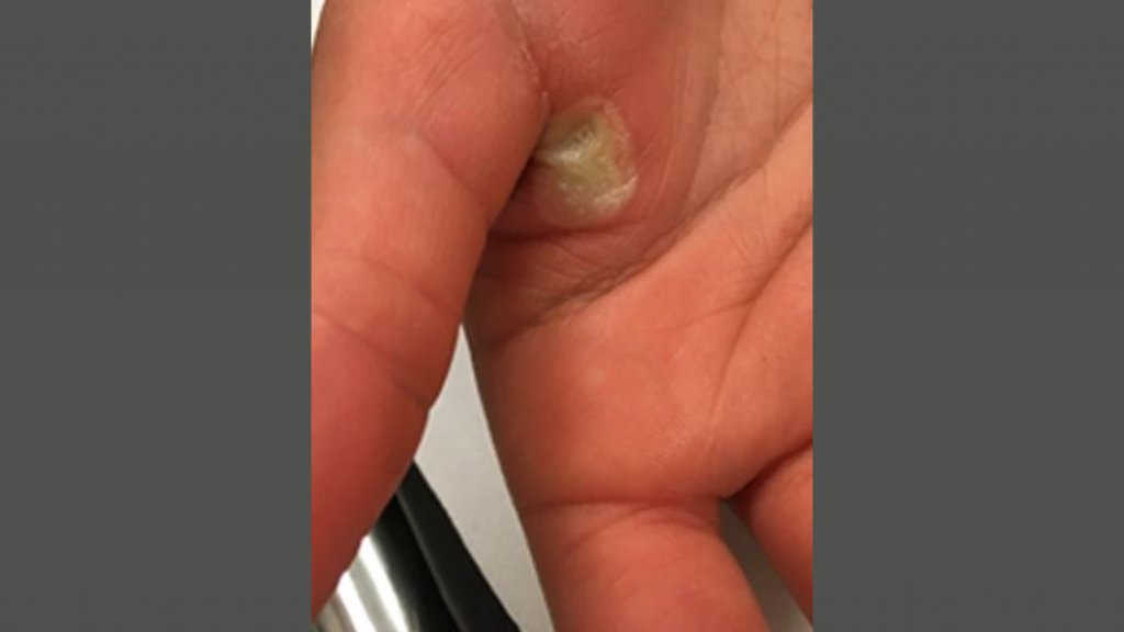 De brandwond op haar hand.