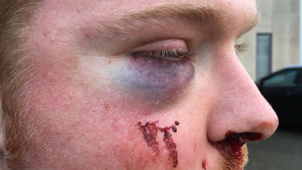 Het slachtoffer na de mishandeling.