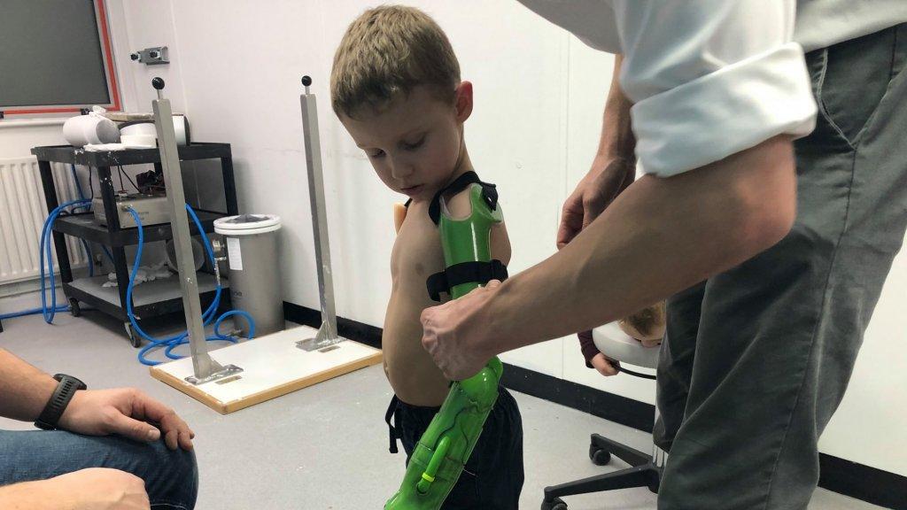 Jacob met zijn nieuwe 'Hulk'-arm.