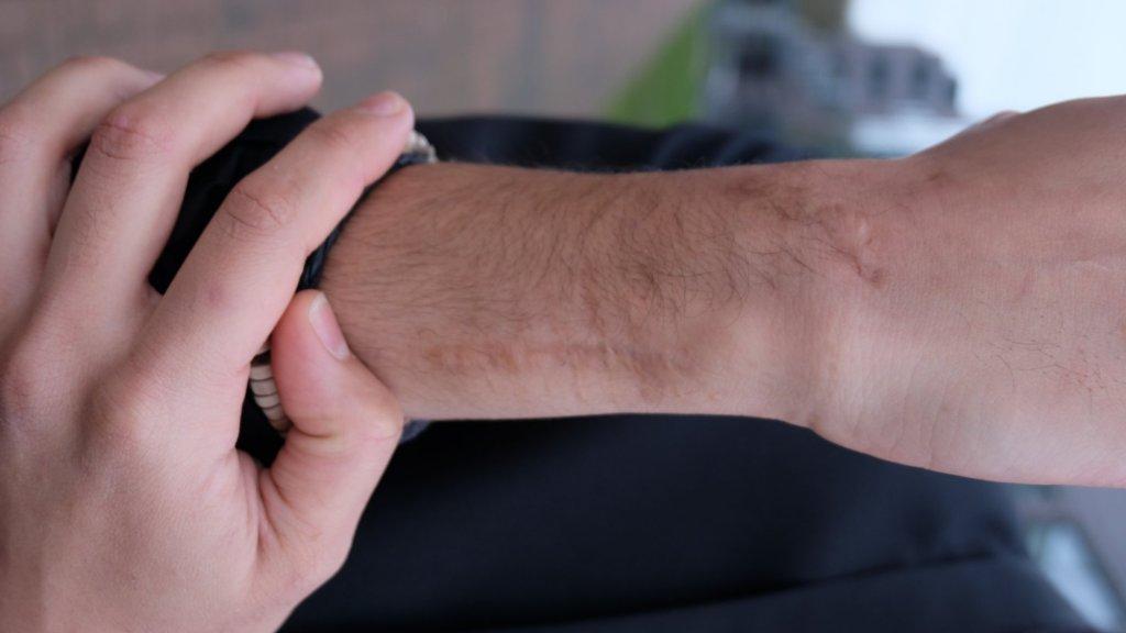 Noor heeft littekens op zijn arm. Volgens hem het gevolg van martelingen.