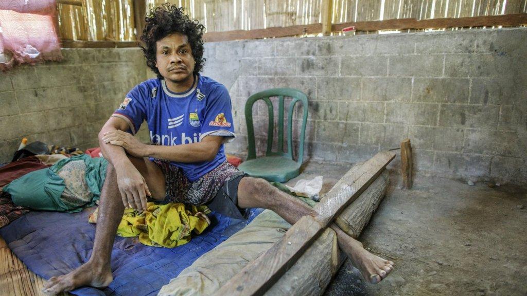 Er worden niet alleen kettingen gebruikt om mensen vast te zetten. De Indonesiër Petrus Roy (35) wordt met behulp van stukken hout van zijn vrijheid beroofd. Hij kan al 10 jaar geen kant op.