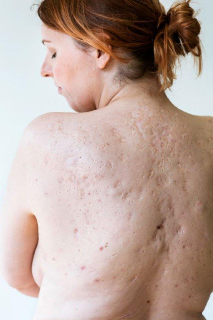 Susanne heeft huidziekte hidradenitis suppurativa